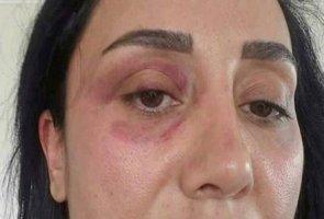 Ünlü oyuncu sevgilisini darp etti - Tekme tokat dövdü